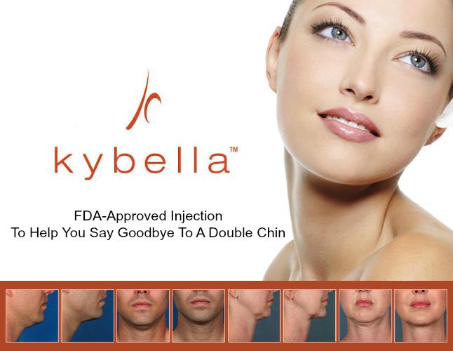 Préférence KYBELLA® : Un nouveau traitement pour faire disparaitre votre  QH77