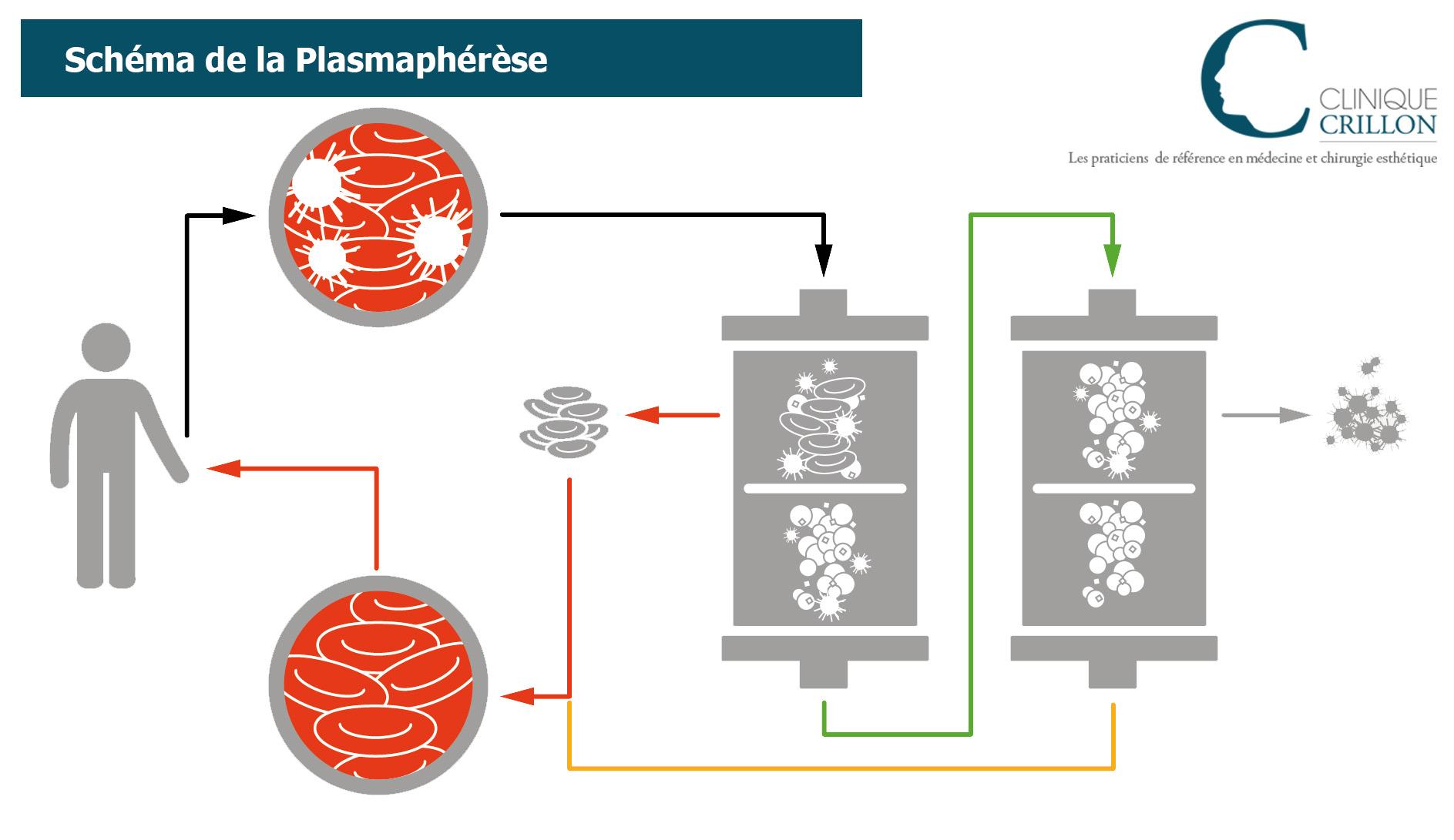 plasmaphérèse